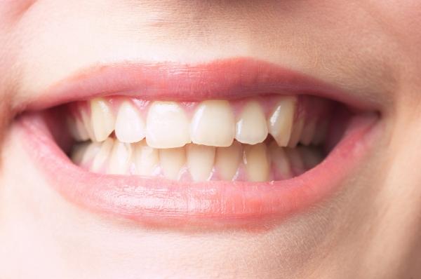 歯茎のエステ